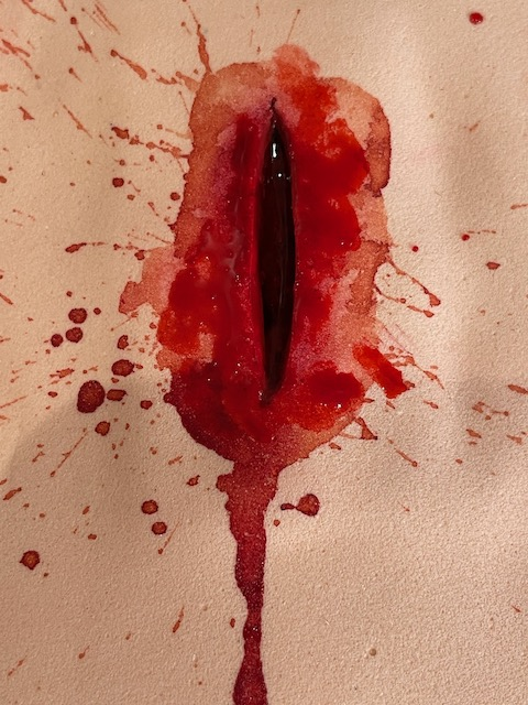 Chest penetrating stab wound