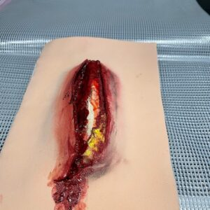 Large Open Fracture