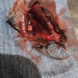 Glass shard wound