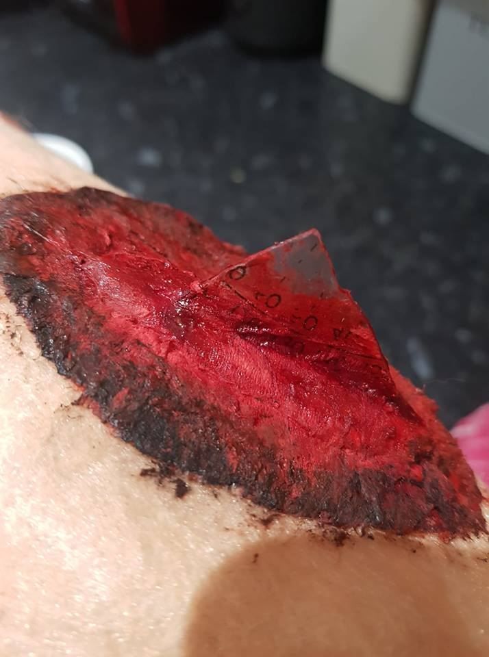 Embedded Object Puncture Wound